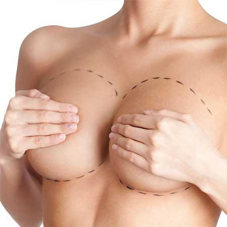 breast-augmentation repair surgery